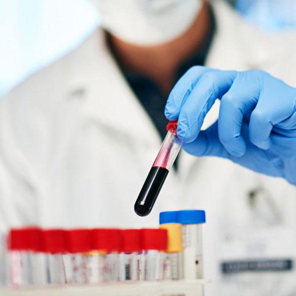 hematoloji img
